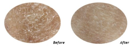 skin before after